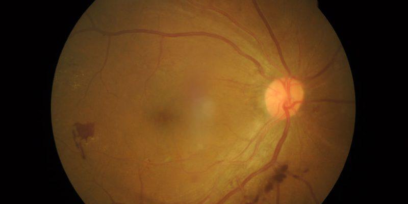 desprendimiento de retina Málaga