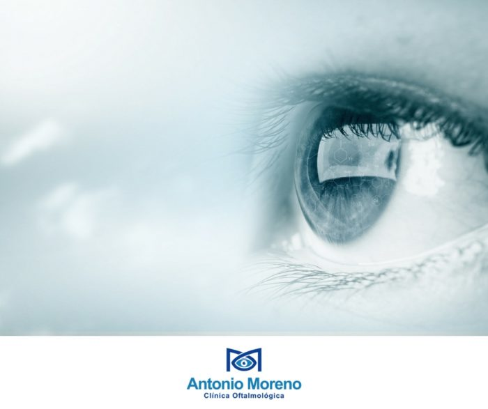 clínica ocular Málaga