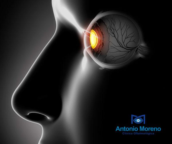 retina Málaga